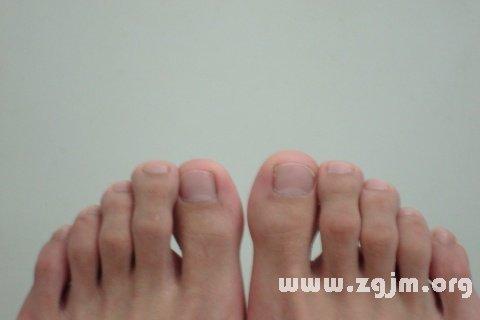 梦见别人的一只断脚趾