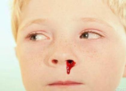 梦见儿子流鼻血有事吗?